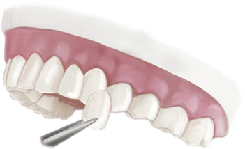 Porcelain Veneers Illustration