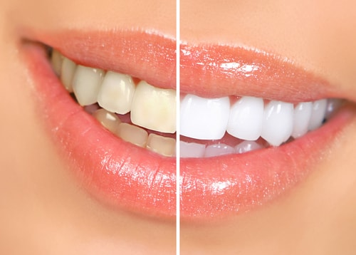 Teeth Whitening in Columbus OH